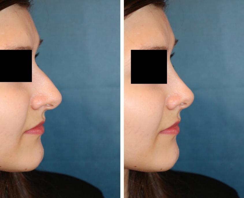 Nasenkorrektur Vorher - Nachher nach 5 Wochen