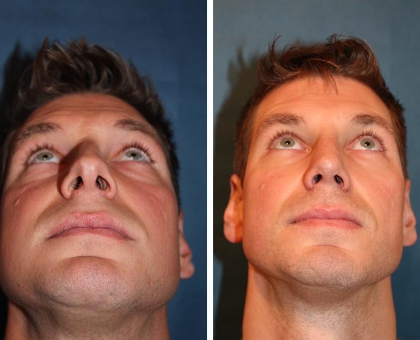 Nasenkorrektur Vorher - Nachher Maenner