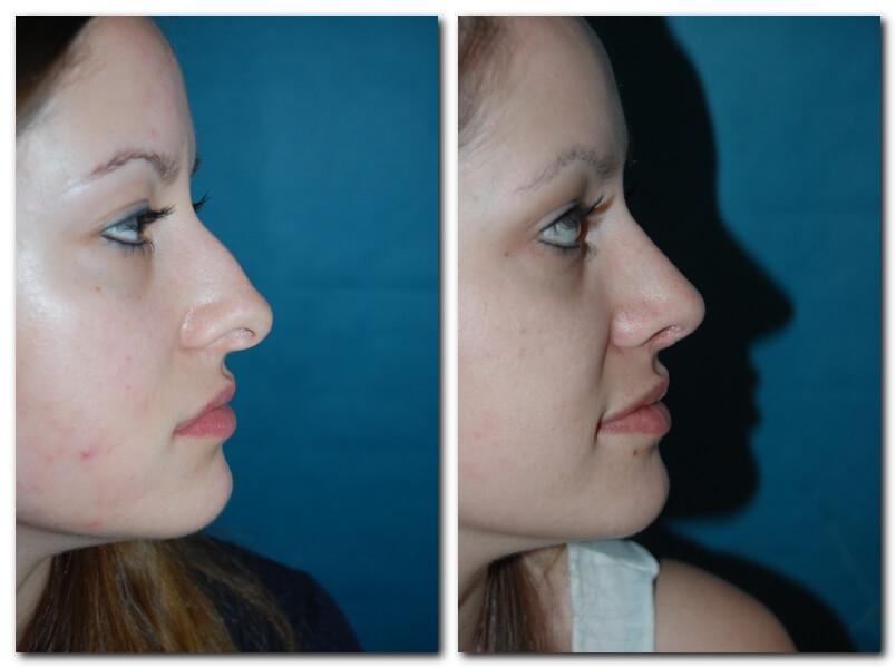 Nasenoperation - vorher/nachher nach 6 Wochen