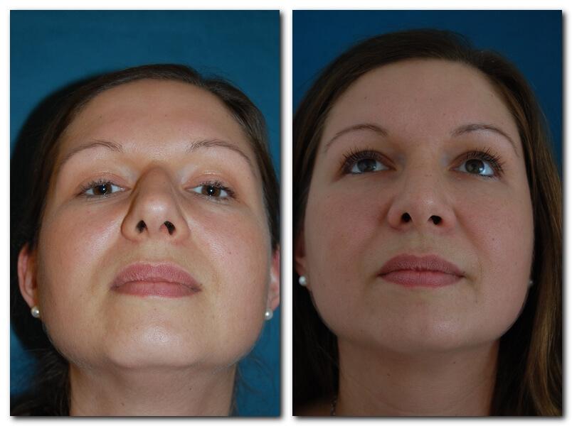 Nasenkorrektur - vorher/nachher nach 6 Wochen