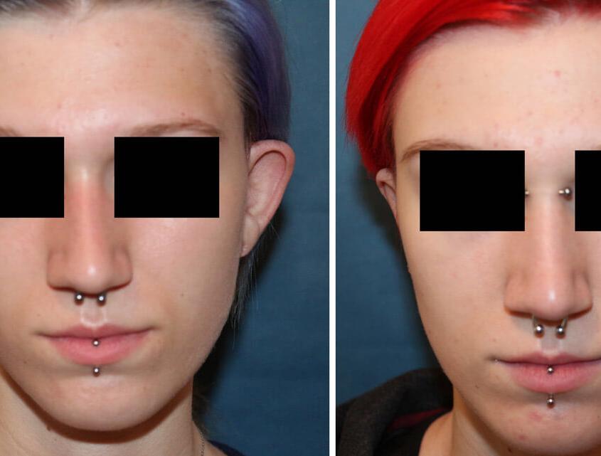 Ohrenkorrektur Vorher - Nachher nach 5 Wochen