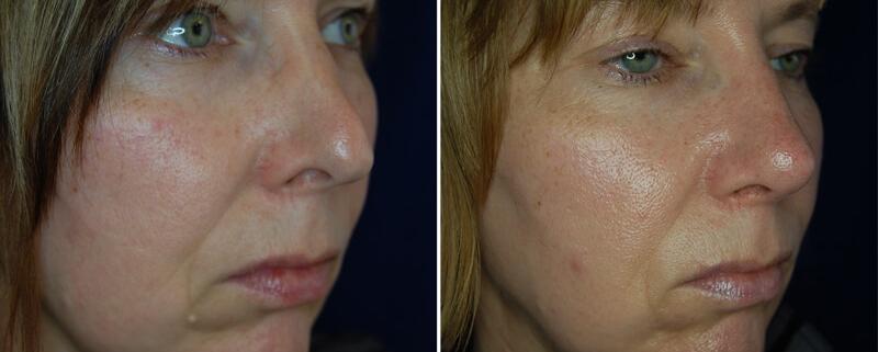 Rekonstruktive Nasenoperation 6 Monate
