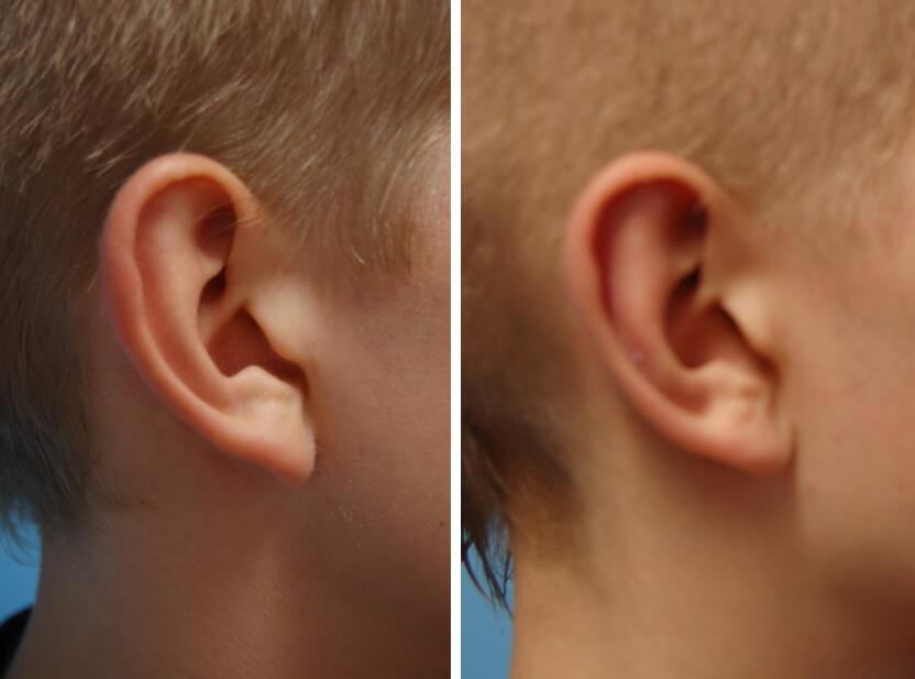 Ohrenkorrektur Vorher - Nachher / Mit zusätzlicher Verkleinerung des Ohrgrübchens