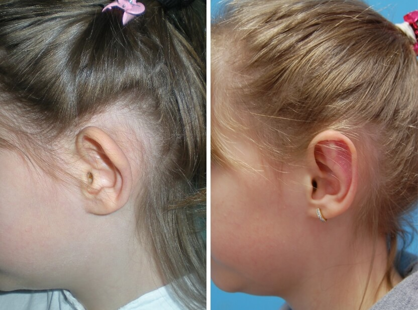 Ohren anlegen Vorher - Nachher / Seitenansicht links