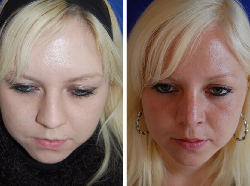 Nasenkorrektur 4 Monate danach