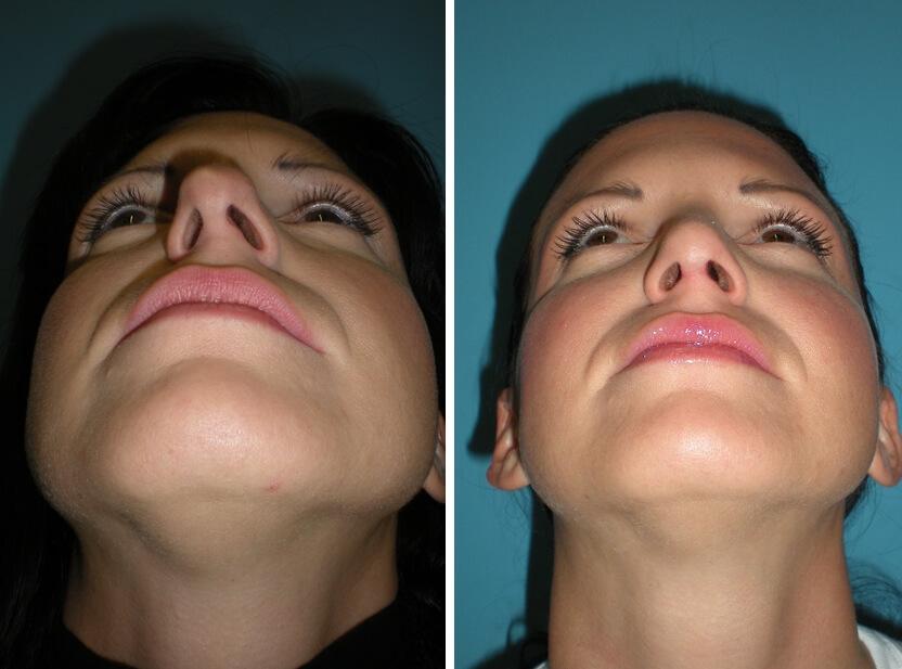 Nasenkorrektur ohne sichtbaren Narben