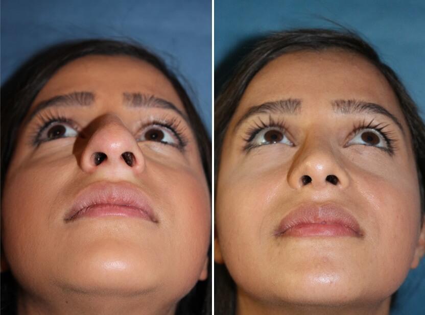 Nasenkorrektur vorher nachher