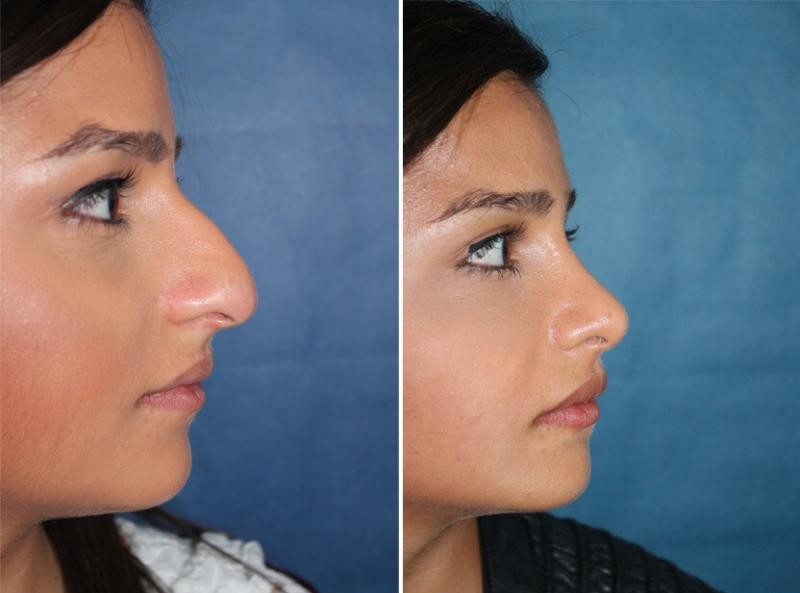 Nasenkorrektur vorher nachher nach einem Jahr