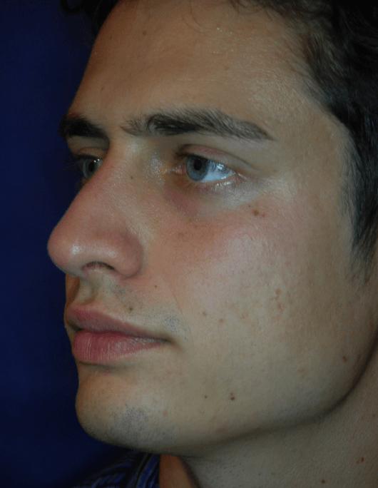 Patientenbegleitung Nasenoperation/ 3 Monate nach der Operation