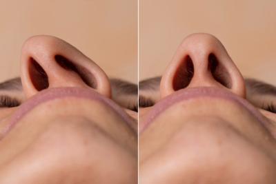 Nasenscheidewand OP Septumdeviation