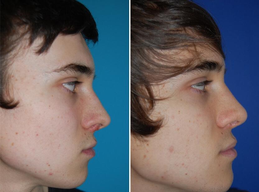 Nasenkorrektur Vorher - Nachher 2 Monate nach offener Nasenscheidewandkorrektur