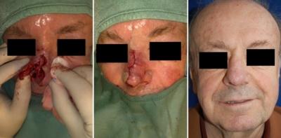 2 Monate postoperativ nach Rekonstruktion des knorpeligen Nasengerüstes