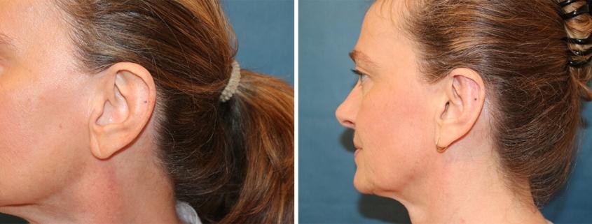 Ohrenkorrektur Vorher - Nachher