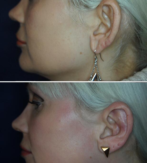Segelohren Vorher - Nachher / 3 Monate nach Ohranlegplastik