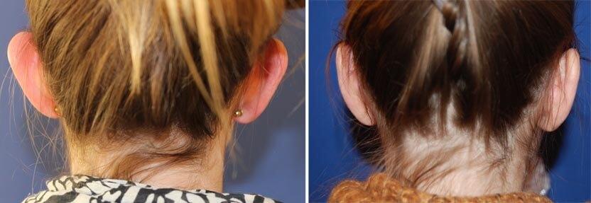 Ohrenkorrektur vorher-nachher bei Frauen