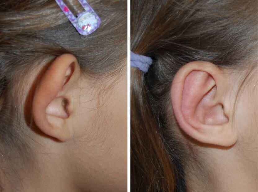Ohrkorrektur Vorher - Nachher nach 2 Monaten / Vorderansicht
