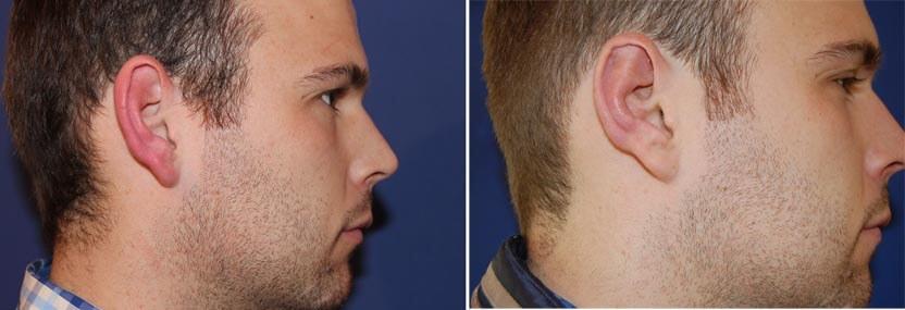 Ohrenkorrektur Vorher - Nachher / 1monat nachher