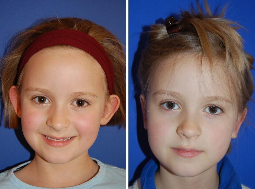Ohrenkorrektur Vorher - Nachher nach 2 Monaten / Vorderansicht