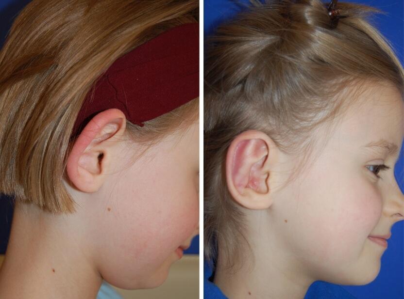 Ohrenkorrektur Vorher - Nachher nach 2 Monaten / Seitenansicht rechts