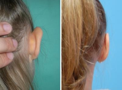 Ohrenkorrektur Vorher - Nachher / Rückansicht rechts