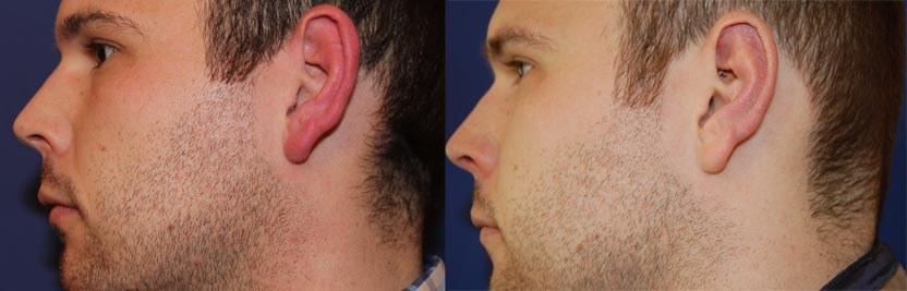 Ohrenkorrektur Vorher - Nachher / bei Mann