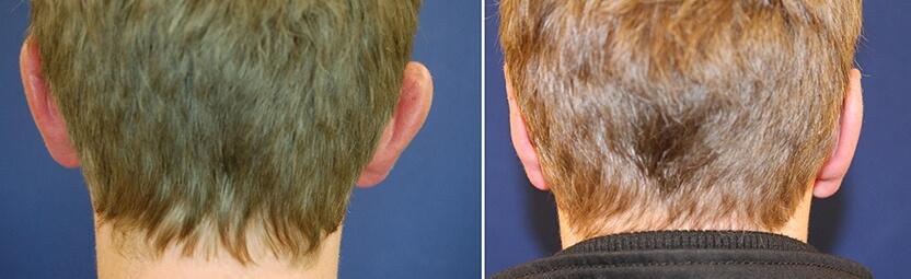 Ohrenkorrektur Vorher-Nachher / hinterkopf
