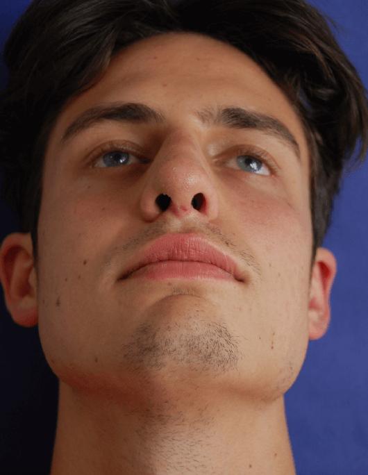 Patientenbegleitung Nasenkorrektur / 12. Tag nach der Operation