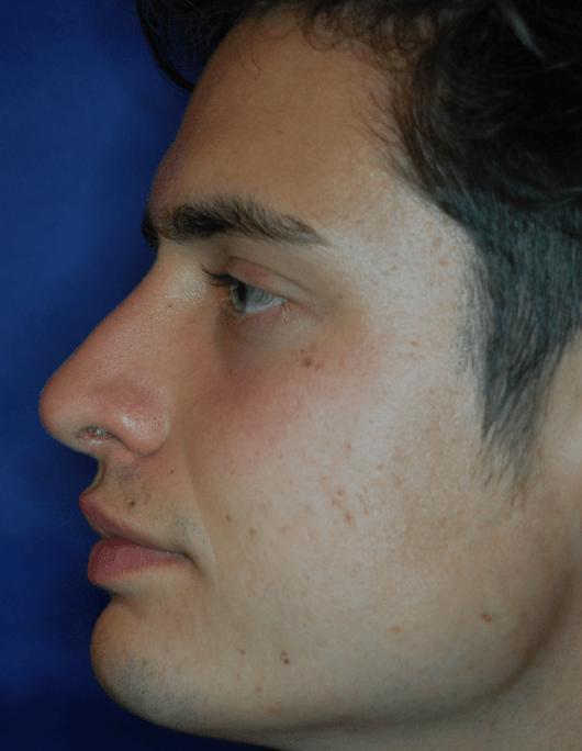 Patientenbegleitung Nasenkorrektur / 3 Monate nach der Operation