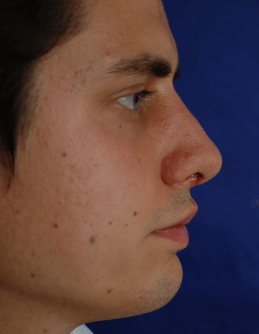 Patientenbegleitung Nasenkorrektur / 3 Wochen nach der Operation
