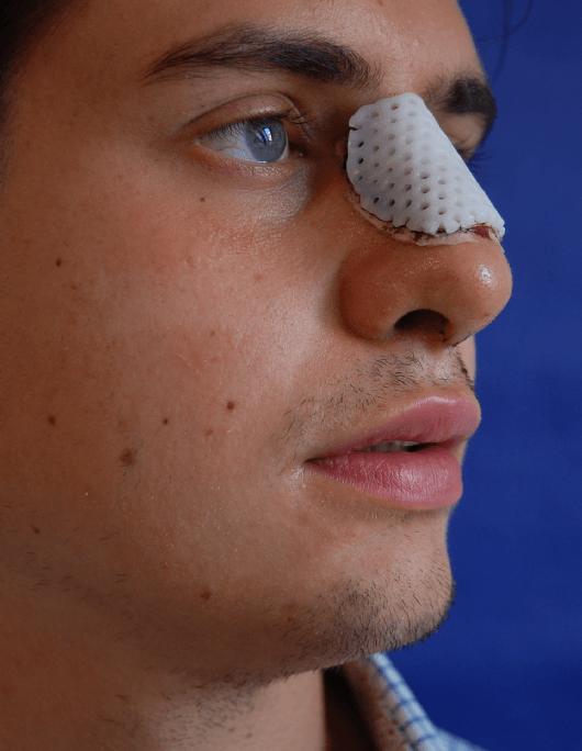 Patientenbegleitung Nasenkorrektur / 5. Tag nach der Operation