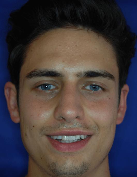 Patientenbegleitung Nasenkorrektur / 6 Wochen nach der Operation