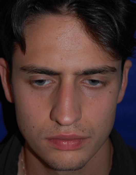 Patientenbegleitung Nasenkorrektur Vorher / Nasenscheidewandverkrümmung, Nasenmuschelvergrösserung bds., Höckernase, knorpelige Langnase mit abgesunkener Nasenspitze, invers gekrümmte Flügelknorpel