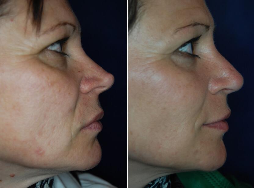 Nasenkorrektur Vorher - Nachher 3 Monate nach Wiederaufbau mit körpereigenem Knorpel