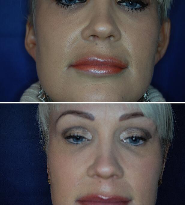 Ohrenkorrektur Vorher - Nachher / 3 Monate nach Ohranlegplastik