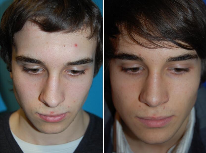 septumplastik Vorher - Nachher 2 Monate Nasenscheidewandkorrektur