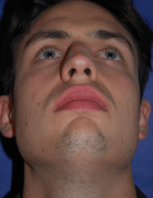 Patientenbegleitung Nasenkorrektur