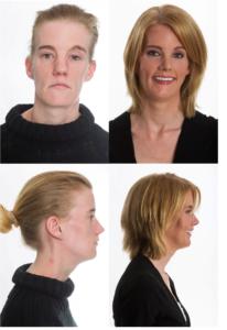 Nasenop vorher-nachher