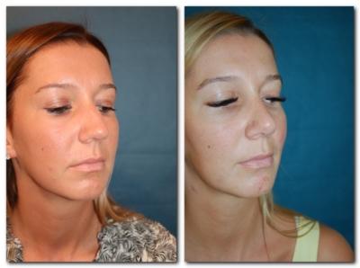 Nasenkorrektur Vorher Nachher Schräg Seitlich
