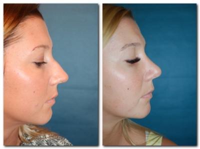 Nasenkorrektur Vorher Nachher Seitlich