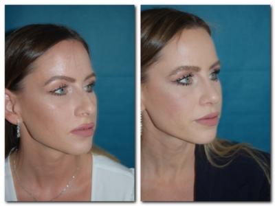 Nasenkorrektur Vorher Nachher halbseitenprofil