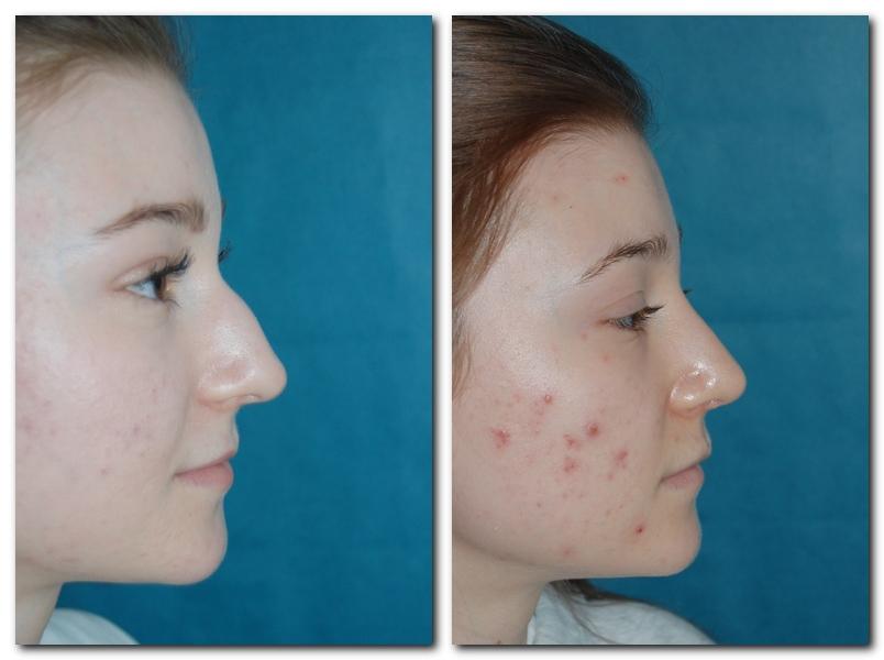 Profil der Nase