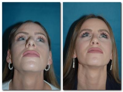 Nasenkorrektur Vorher Nachher Unten